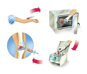 אורטוקין היא טכנולוגיה ביולוגית מתקדמת לטיפול במפרקים עם אוסטאוארטריטיס, פציעות ספורט ופריצת דיסק ללא תופעות לוואי.