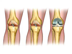 החלפה חלקית של הברך או ניתוח החלפת ברך מלאה