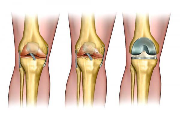 החלפה חלקית או מלאה של מפרק הברך