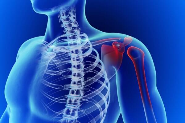 אבחון וטיפול בכאבים בכתף