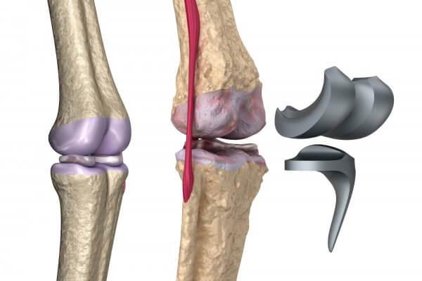 רגישות לחלקי מתכת של מפרק ברך חלופי
